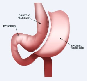 Weight Loss Surgery:  A Gastric Sleeve procedure  involves most of the stomach being removed.